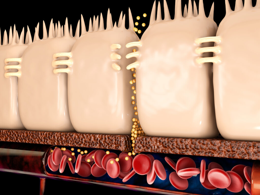 3d Rendering of leaky gut, in intestine where these tight junctions come apart.