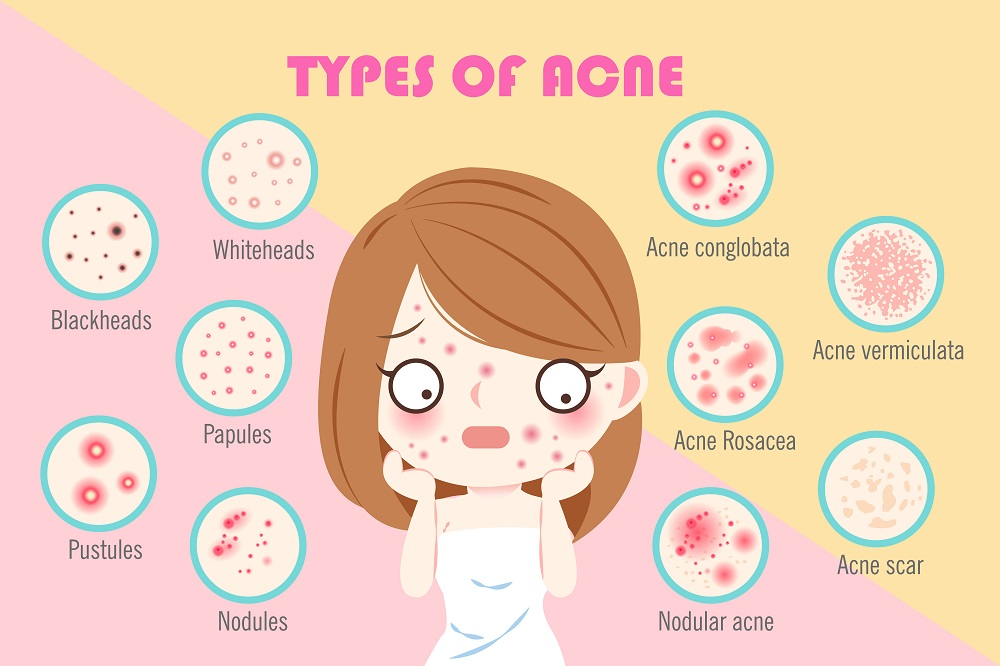 Lactoferrin and Its Effect on Acne