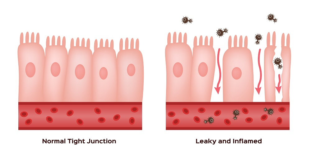 Do you have leaky gut syndrome